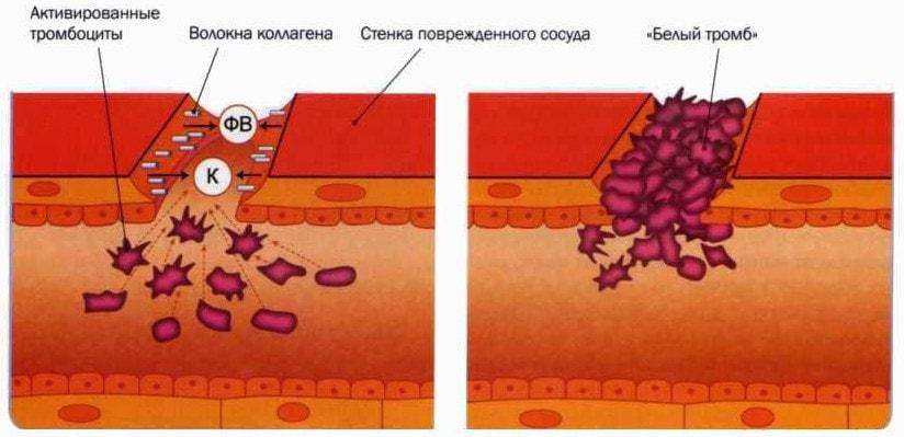 Механизм образования первичного тромба